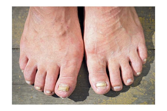 Pleseň na nohách - problém, ktorý dokáže potrápiť